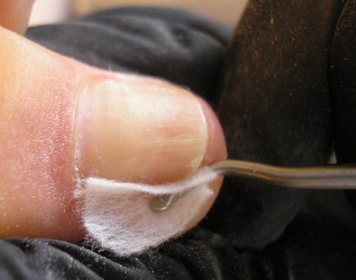 Тампонирование вросшего ногтя с помощью Каполина.